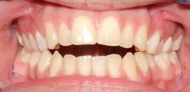 Example of Anterior Open Bite