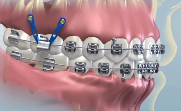 upward intrusion of the maxillary molar teeth using temporary orthodontic anchorage screws.