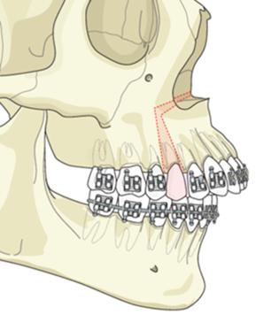 segmental jaw surgery